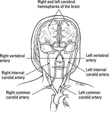 """Stroke, Si no conocido como un """"ataque cerebral"""""""